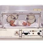 How Long Are Premature Babies Kept in Incubators?