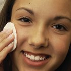 When Does Oily Skin Stop for Teens?