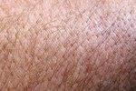 home remedies for skin mites on humans ehow. Black Bedroom Furniture Sets. Home Design Ideas