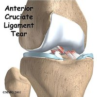 Recover Quickly from ACL Knee Surgery