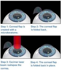 How Does Laser Eye Surgery Work?