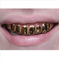 Gold dental crowns are going to be very obvious in the front of your mouth.
