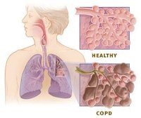 Is COPD Hereditary?
