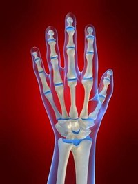 Initial Symptoms of Arthritis in Hands