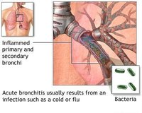 Symptoms of Bronchitis in Toddlers