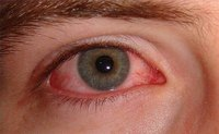How Long Does It Take for Pinkeye to Clear Up?
