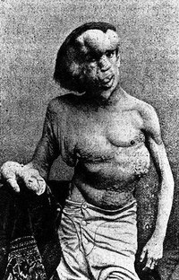 What Are the Symptoms of Elephant Man Disease?