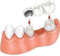 Clean Dental Bridges
