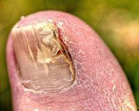 A toenail infected with fungus