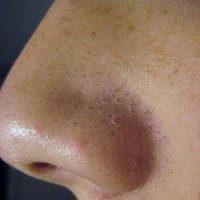Blackheads on the nose