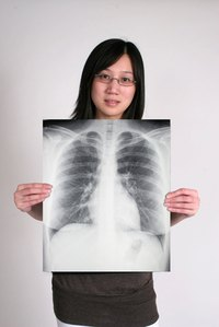 A chest X-ray can show a cardiac shadow.