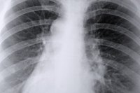 An x-ray view of the lungs.
