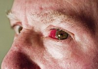 An eyeball infection can turn it red.