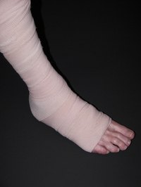 Make sure to wrap your sprained foot properly so it can heal.