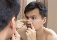 Squeezing pimples can result in  inflammation and scarring.