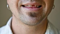 What Makes Adults Lose Their Teeth?