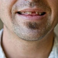 how to use teeth gap bands