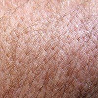 How To Remove An Ingrown Hair Permanently Ehow
