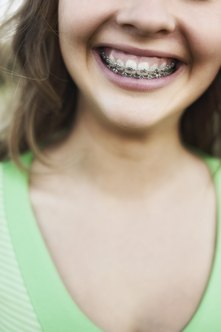 Orthodontists are best known for applying braces.