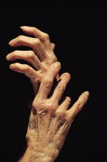 Hand numbness affects most activities of daily living.