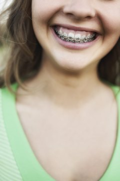 You can't deduct the cost of braces unless you itemize.