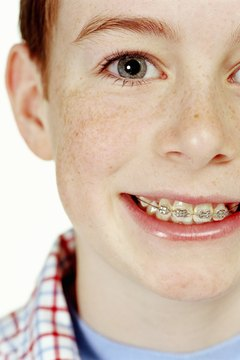 Braces can easily cost $5,000 or more.