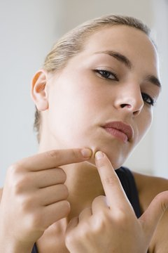 Squeezing blackheads will make the problem worse.