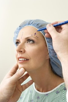 Plastic surgeons usually map out incisions to show patients what to expect.