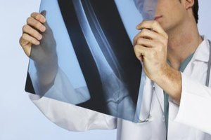 Chiropractors and physicians use X-rays in their work.