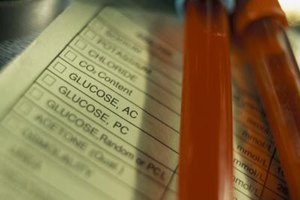 Glucose is oxidized during cellular respiration.