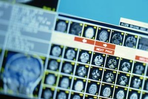 Radiology majors learn to administer MRI tests.