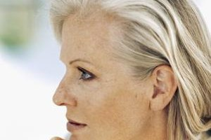 Many women experience dark spots after age 40.