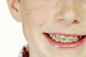 Prerequisites in College to Become an Orthodontist