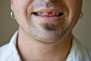 One missing tooth may lead to losing other teeth.