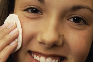 How to Prevent Pock Holes From Blackheads