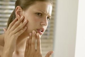 Teens may be very concerned about the size of their pores.