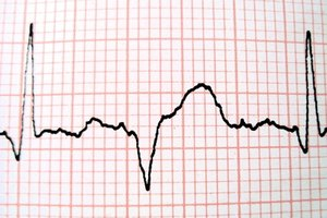 EKG Training for a Medical Assistant