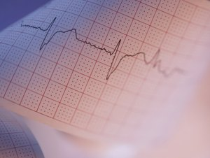 EKG Technician Certification Programs