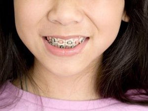 Orthodontist Information