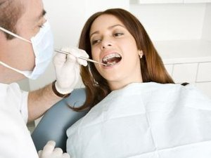 How Much Do Dental Inlays Cost?