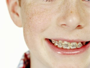 Financial Help for Braces for Kids' Teeth
