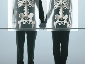 Vitamins for Healthy Bones