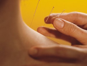What Is a Physician Acupuncturist?