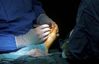 Podiatrists perform surgical procedures such as bunionectomies.