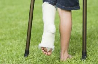 A broken bone must be immobilized properly by a trained cast technician.