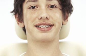 Orthodontists specialize in the placement of braces.