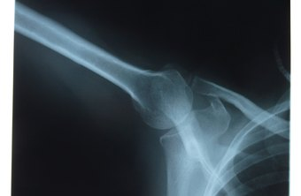 Radiographers use radiation to produce medical images.