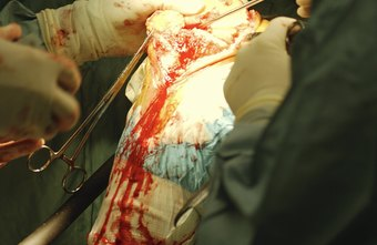 Orthopedic surgery can be performed arthroscopically or through open incisions.