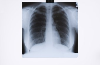 Some radiologic technicians, called radiographers, specialize in taking X-rays.