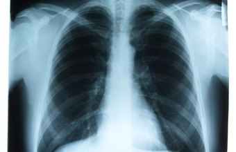 Radiographers create X-ray images for diagnostic purposes.